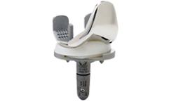 GEMINI® FIXED MK II是一款全解剖、旋转平台、保留后交叉韧带的表面膝关节假体;胫骨的解剖型设计,使胫骨假体的覆盖率明显高于对称性胫骨假体,有效的防止假体松动及下沉,活动平台垫片与股骨始终保持面接触,避免应力集中点产生,因而减少了聚乙烯垫片的磨损。髌骨滑槽加深加长,前翼向远端过度更加平滑,可获得更好的髌骨轨迹,有效防止术后髌骨脱位和髌前疼痛的发生。